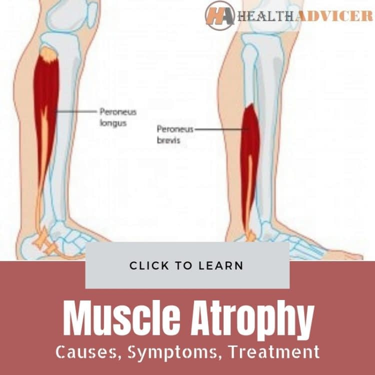 Muscle Atrophy Causes Treatment