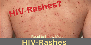 HIV Rashes : Causes, Picture, Symptoms and Treatment